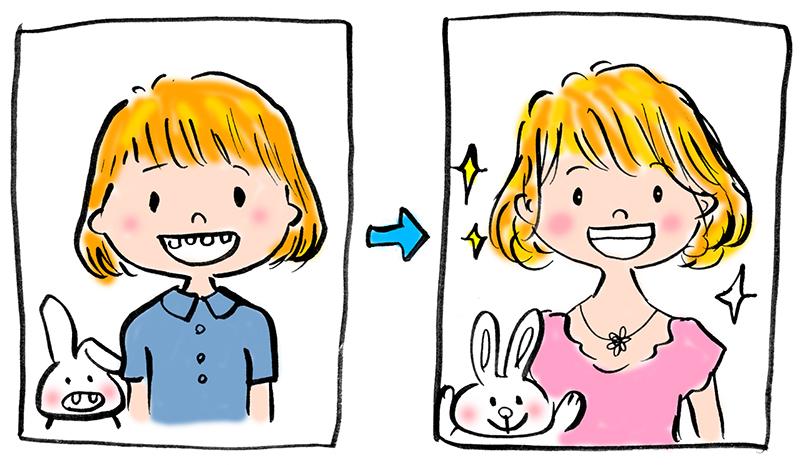 歯科矯正前後の写真
